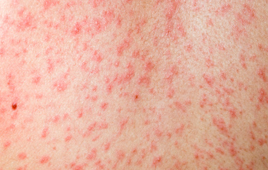 Measles On Adults 105